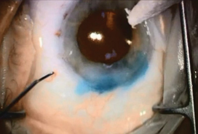 Complex Cataract Case - Pressure Test